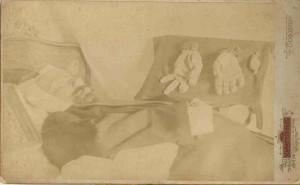 Ужасяваща фотография, показваща тялото на Стефан Стамболов в болницата.