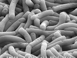 lactobacillus_bulgaricus